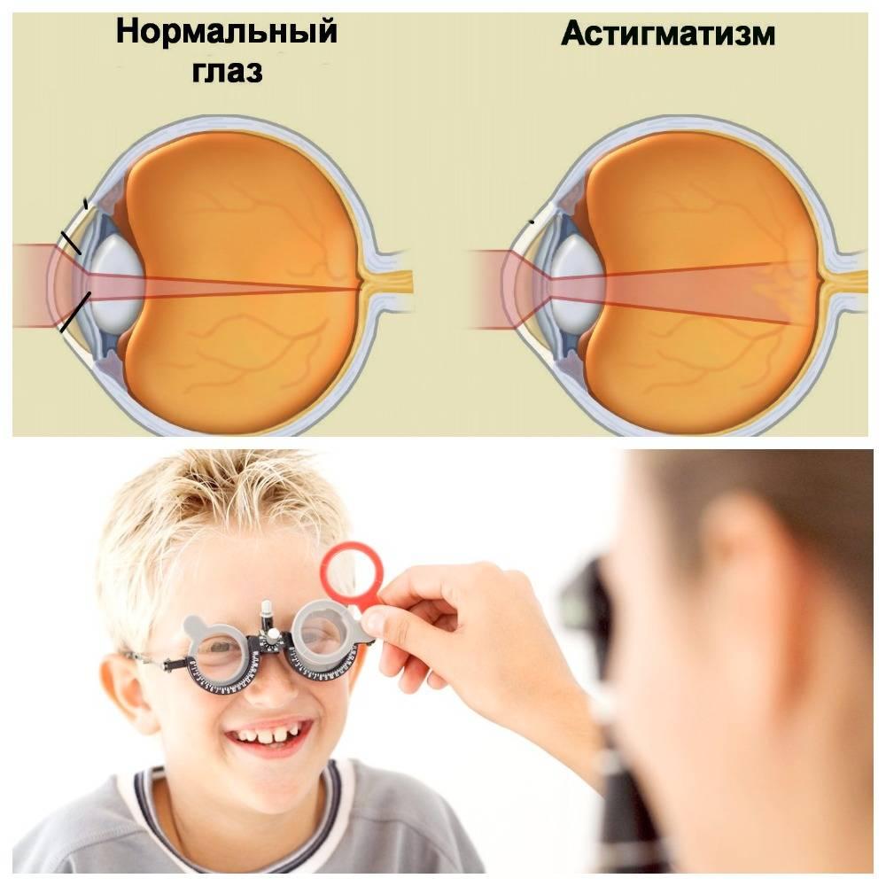 Астигматизм глаз – что это такое? симптомы, диагностика и лечение