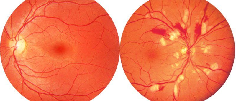 Сужение сосудов глазного дна: причины, сетчатки, симптомы, лечение артерий