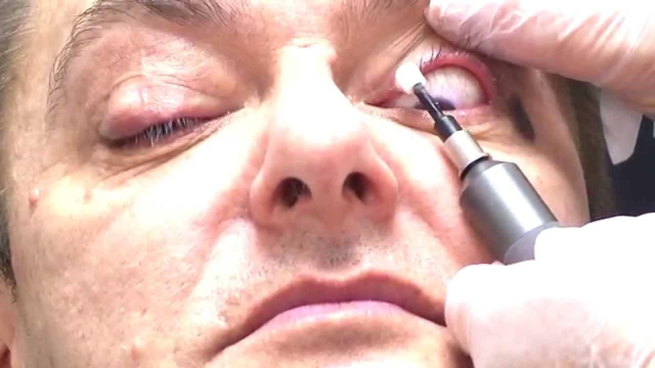 Симптомы и лечение при демодекозе глаз