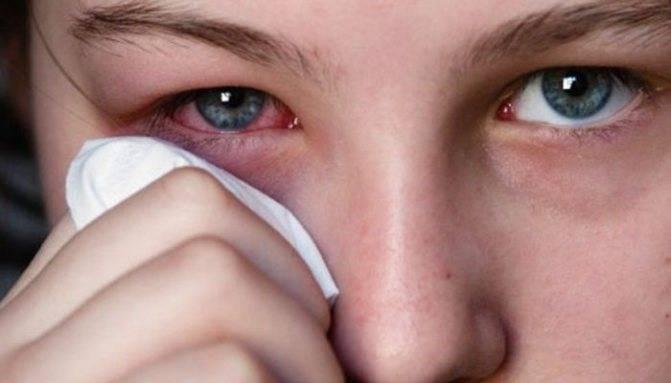 Слезятся глаза у детей: что делать, если у ребенка текут слезы, причины и лечение