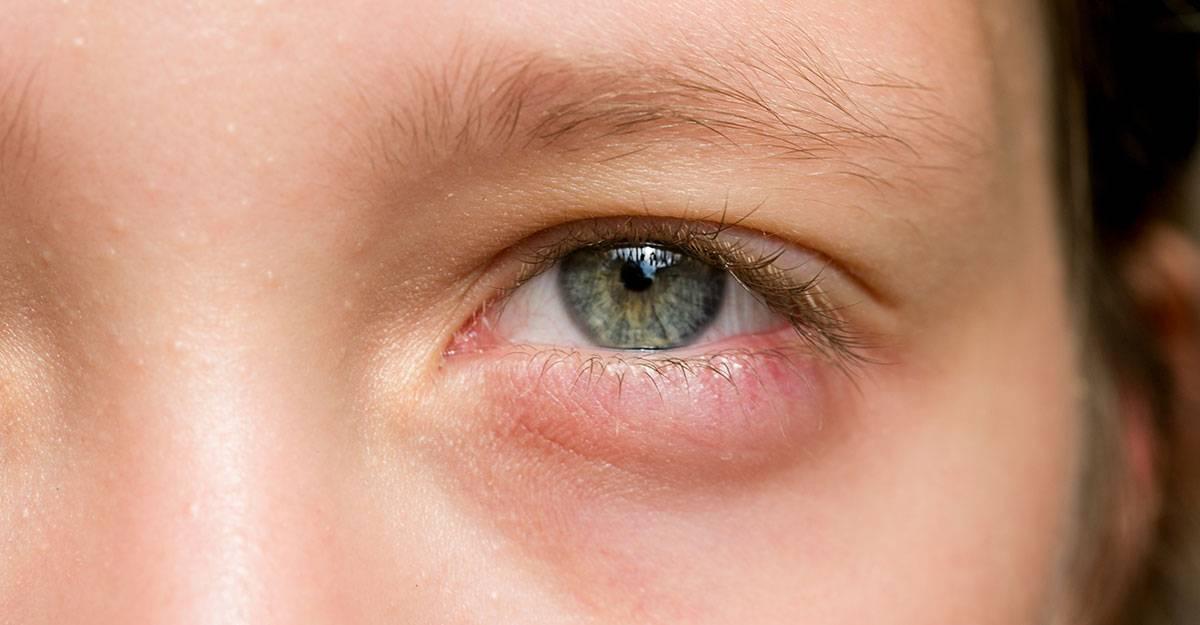 Красные глаза и насморк у ребенка - причины, лечение