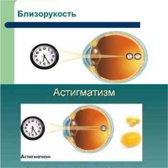 Cложный астигматизм: причины, виды, симптомы и лечение — глаза эксперт