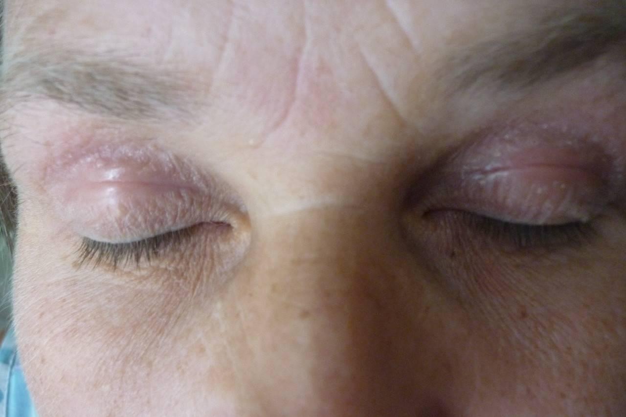 Сухая кожа вокруг глаз и шелушится: причины, лечение в домашних условиях
