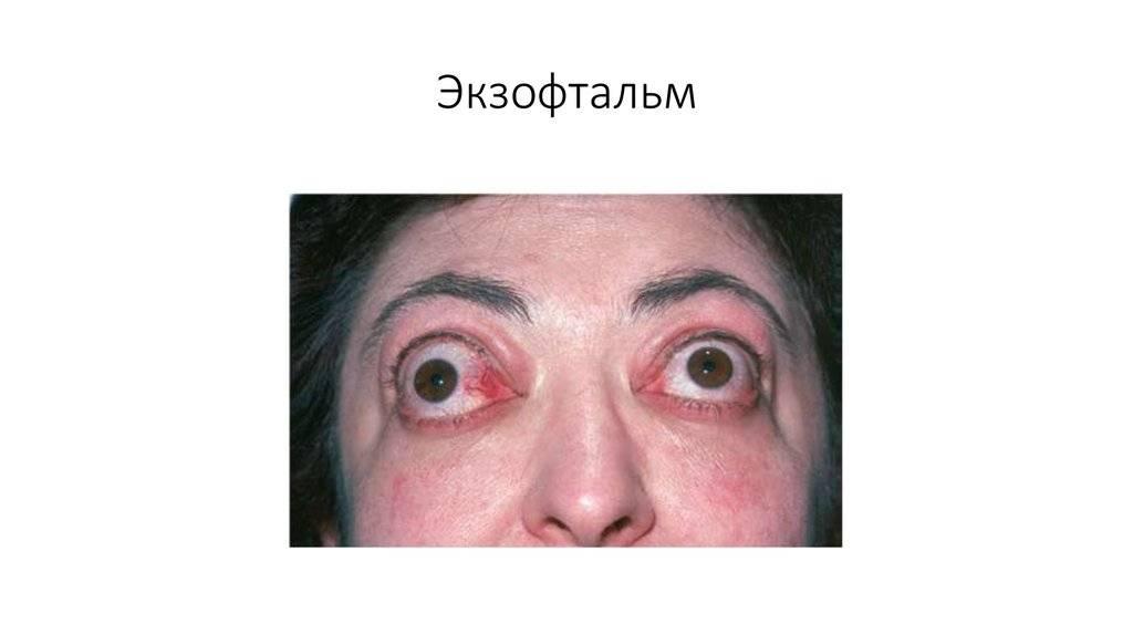 Экзофтальм: лечение при помощи плазмафереза, как лечат препаратами, что это за болезнь
