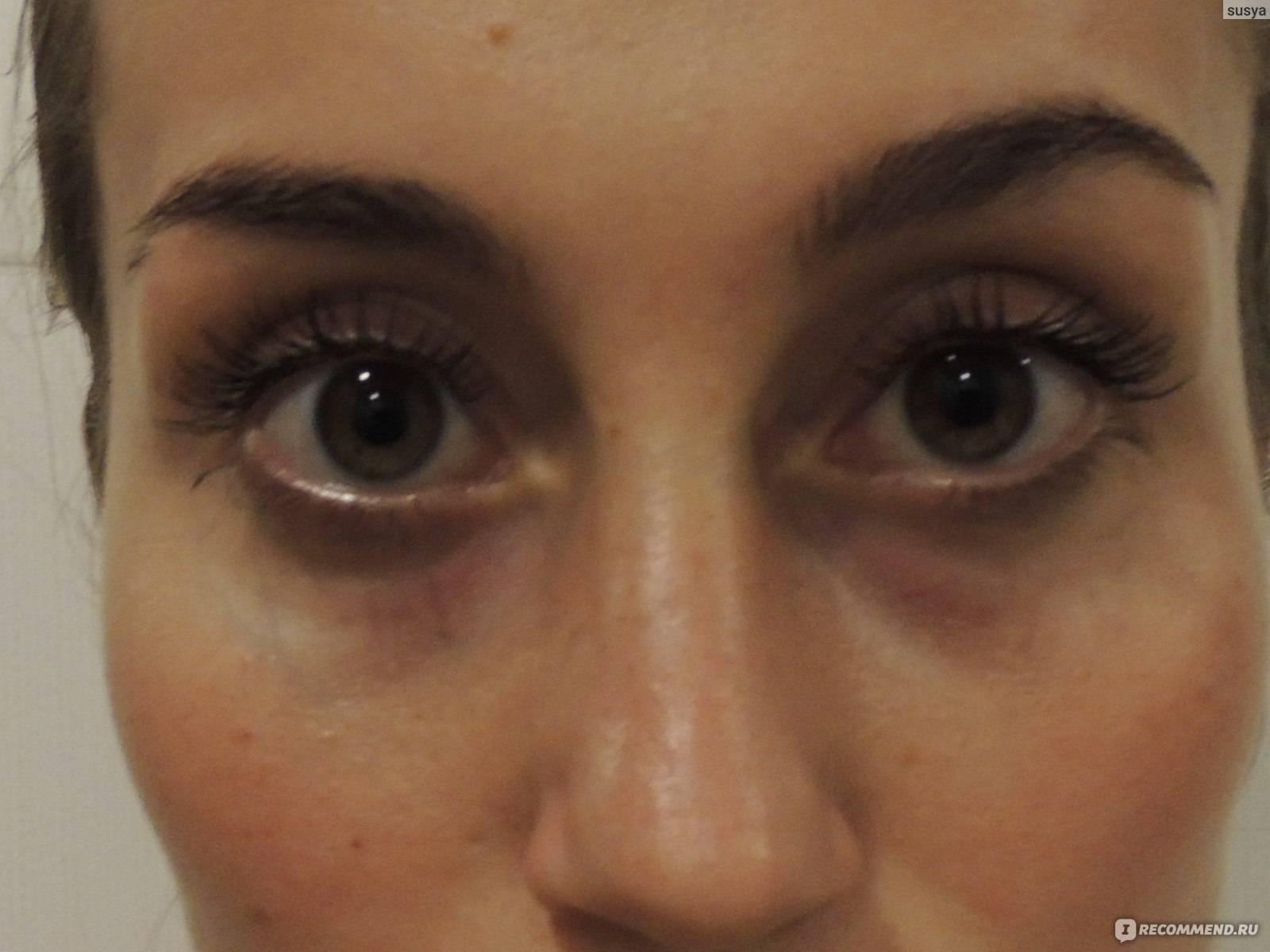 Как убрать синяки и мешки под глазами в домашних условиях: убираем следы от недосыпания и удара