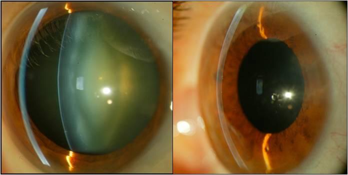 Катаракта, что это? симптомы, лечение, профилактика и прогноз при катаракте глаза