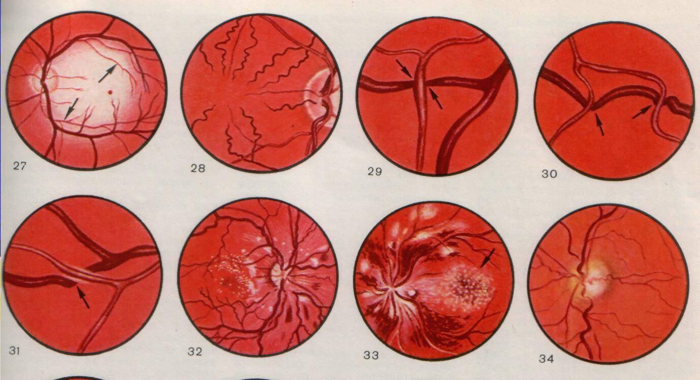 Суженные сосуды глазного дна