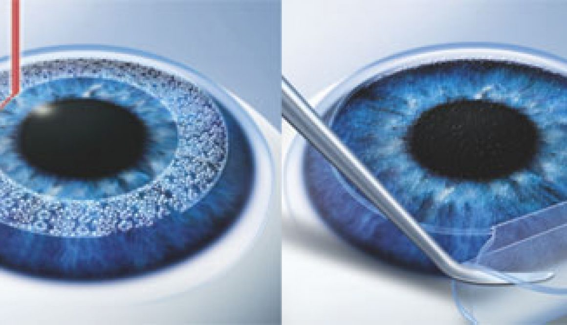 Опасна ли лазерная коррекция зрения: осложнения и риски, на сколько она страшна, опасность, вред, можно ли ослепнуть после лкз