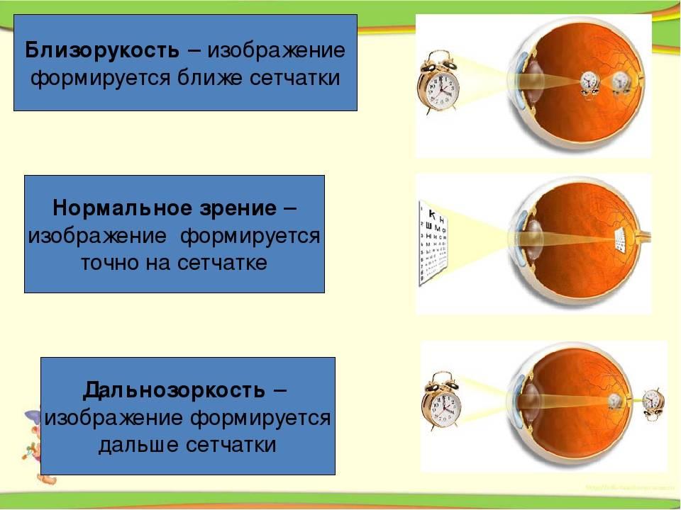 У ребенка одновременно дальнозоркость и близорукость - лечение глаз