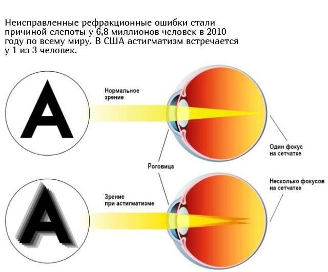 Как видит человек с астигматизмом - особенности зрения oculistic.ru как видит человек с астигматизмом - особенности зрения