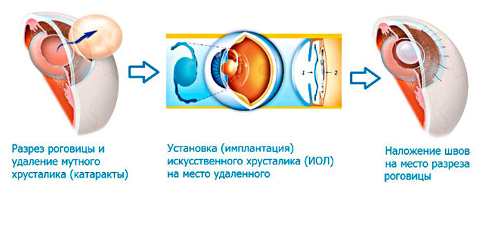 Срок службы искусственного хрусталика глаза - как долго современный материал иол сохраняет свойства и может ли помутнеть