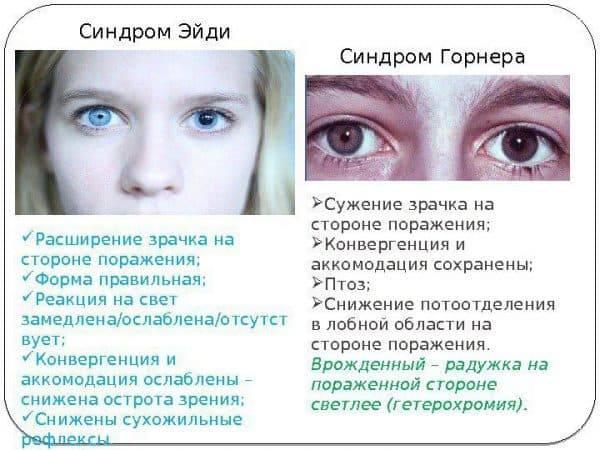 Изменения на глазном дне (миоз)