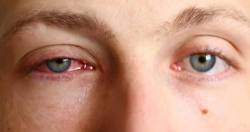 О чём говорят красные глаза и что с ними делать - лайфхакер