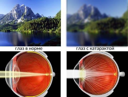 """Туман в глазах: причины, диагностика, лечение - """"здоровое око"""""""