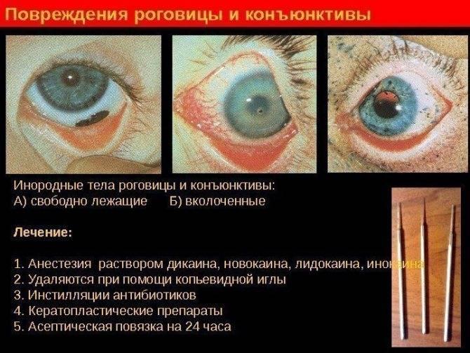 Эрозия роговицы глаза: причины, симптомы, лечение, случаи в жизни