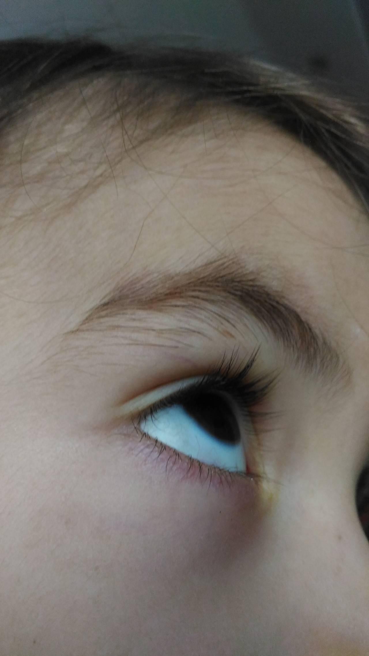 У новорожденного серые глаза какими они будут. когда меняется цвет глаз у новорожденных - медицина для тебя