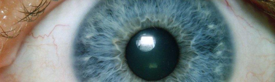 Ощущение пленки на глазу причины | ocularhelp