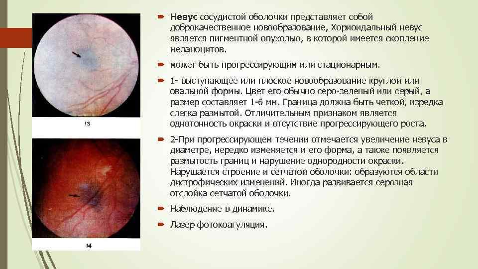 Опухоли хориоидеи доброкачественные опухоли