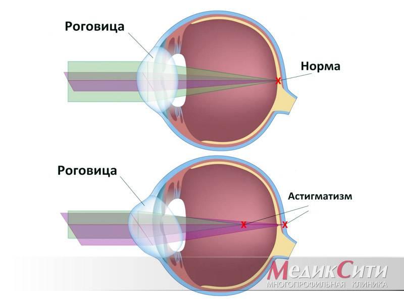 Миопический астигматизм глаз – причины, симптомы и лечение