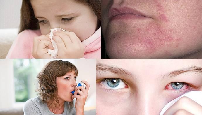 Аллергия на веках от контактных линз. аллергия на контактные линзы: симптомы, причины, лечение