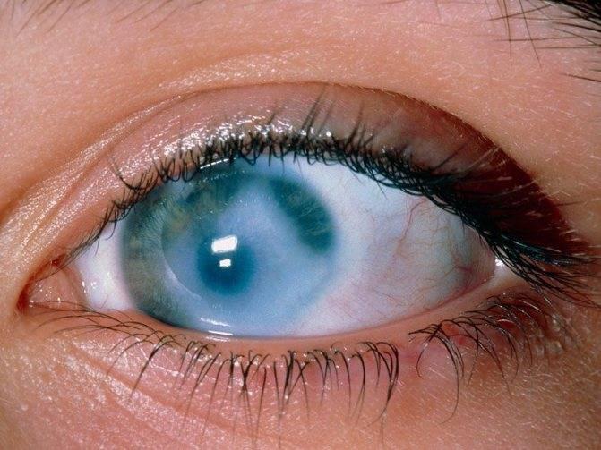 Бельмо на глазу у человека (лейкома): причины, лечение, симптомы (фото), что такое