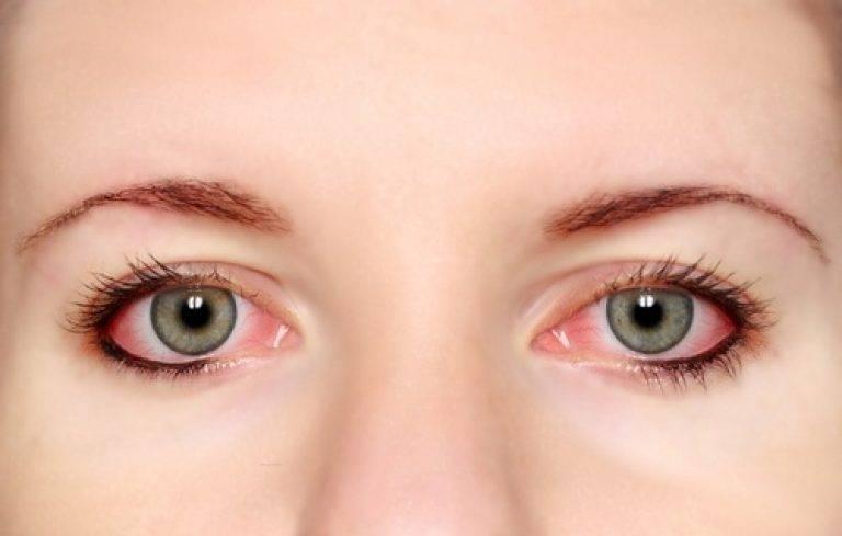 Почему после сна красные глаза?