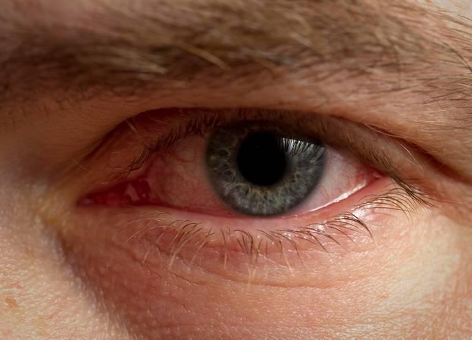 Глаз покраснел и слезится - причины, что делать