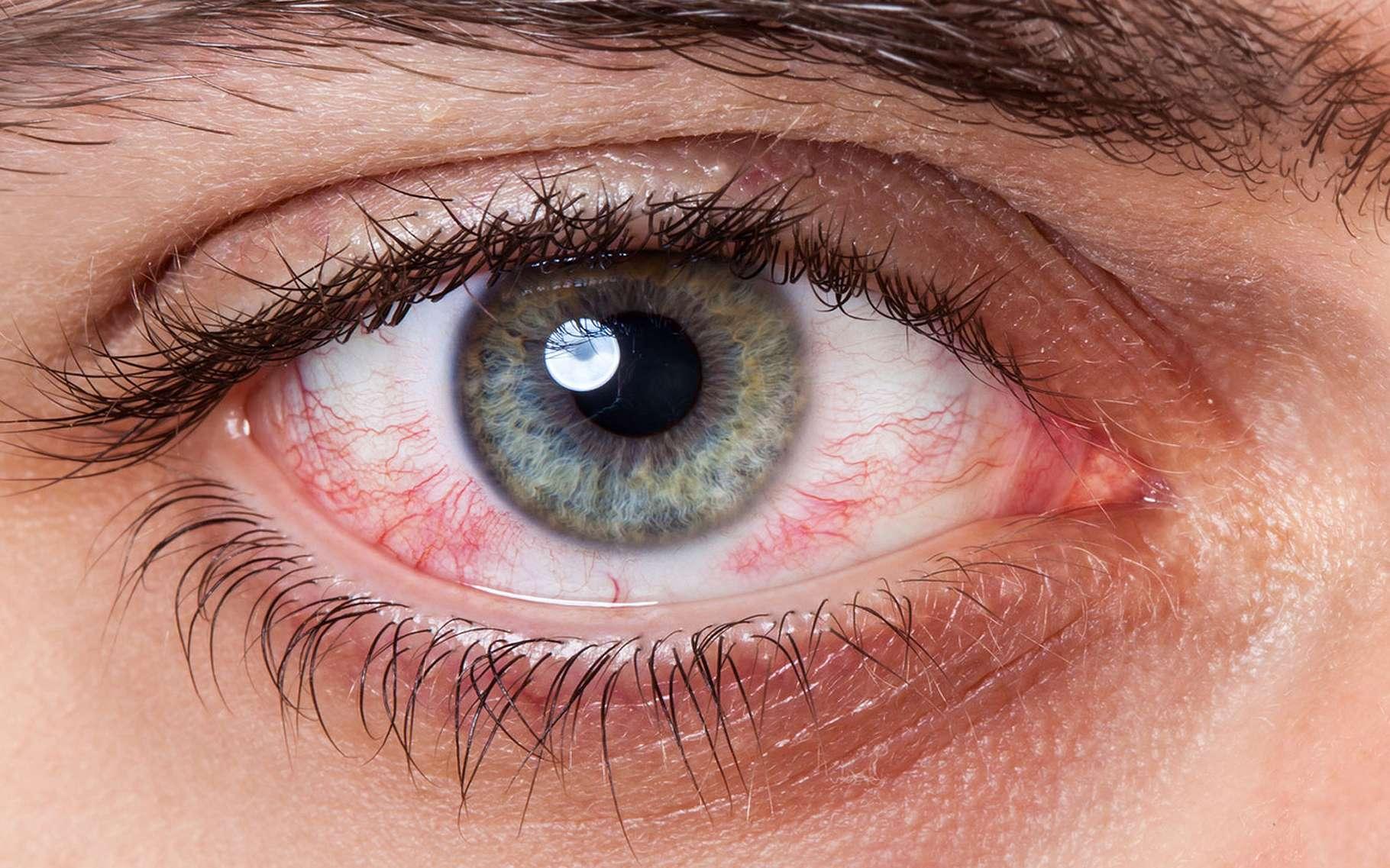 """Искры в глазах: причины, лечение, профилактика - """"здоровое око"""""""