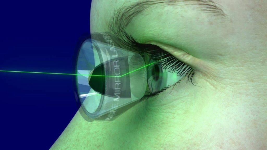 Вторичная катаракта после замены хрусталика: лечение и отзывы