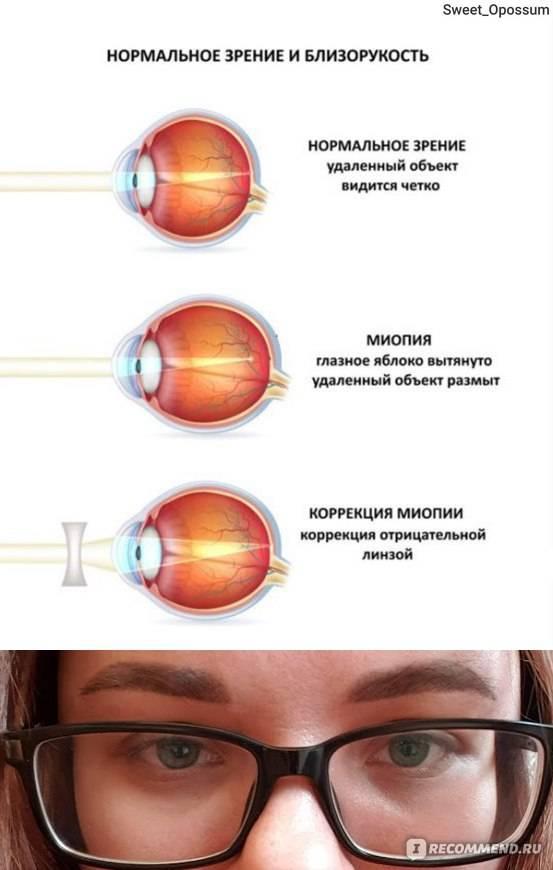 Падает зрение после лазерной коррекции зрения — что делать? или, доктор, сделай мне «enhancement» / блог компании клиника офтальмологии доктора шиловой / хабр
