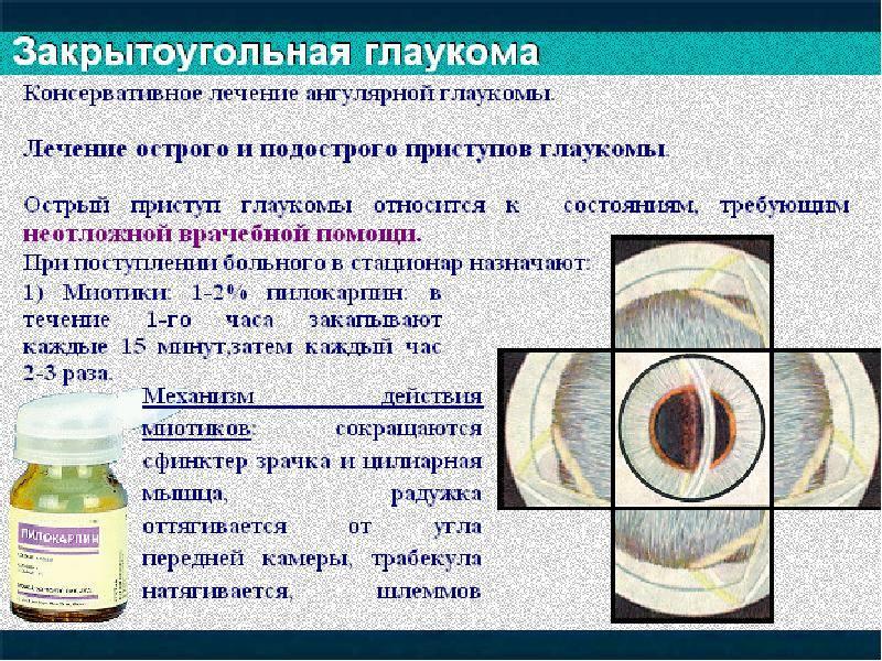 Глаукома: симптомы, причины, лечение и профилактика