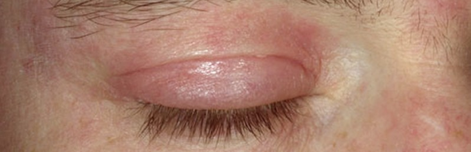 Раздражение вокруг глаз в уголках кожи на веках: лечение капли, симптомы