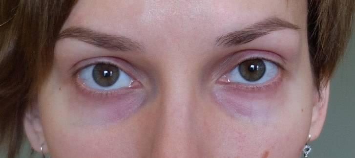 Красные круги под глазами у ребенка или взрослого, причины появления