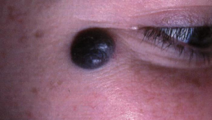 Родинки на глазах — опасно ли это?