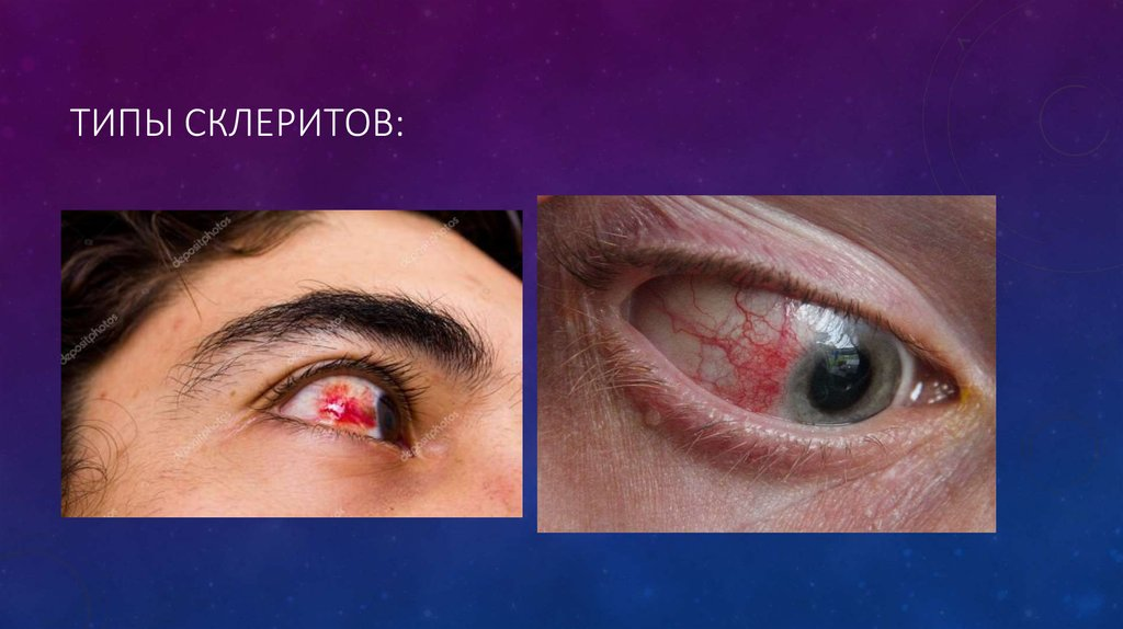 Инъецированы склеры - причины покраснения глаз