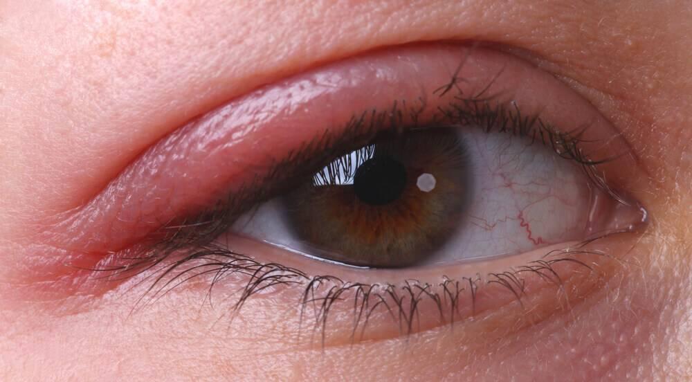 Особенности хронического блефарита: что нужно знать о диагностике и лечении