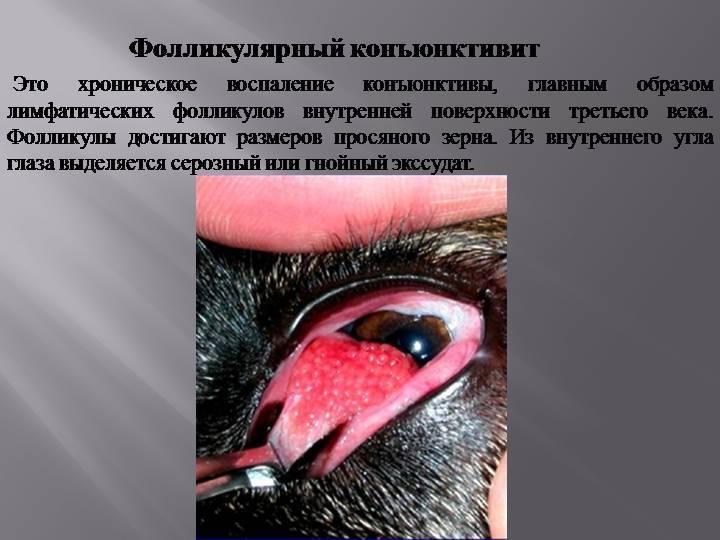 """Фолликулярный конъюнктивит: причины, диагностика, лечение - """"здоровое око"""""""