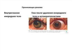Что делать, если линзы закатилась за глаз - 4 основных способа: руками, при помощи капель и воды, пинцетом