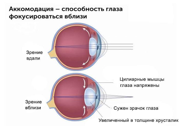 Причины помутнения в глазах, лечение и профилактика патологии