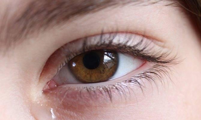 Дискомфорт при ношении контактных линз: симптомы аллергии, раздражения, почему чешутся и слезятся глаза, болит голова, что делать