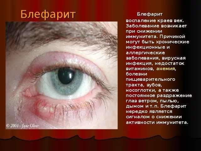 Хронический блефарит обоих глаз: причины, симптомы, лечение (препараты, народные средства), диагностика, профилактика