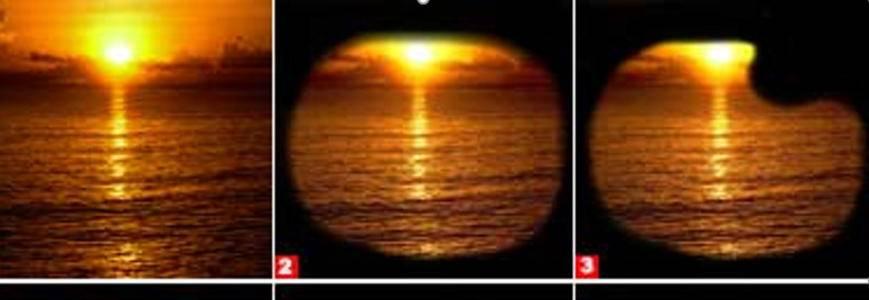 Туннельное зрение - что это, причины и лечение