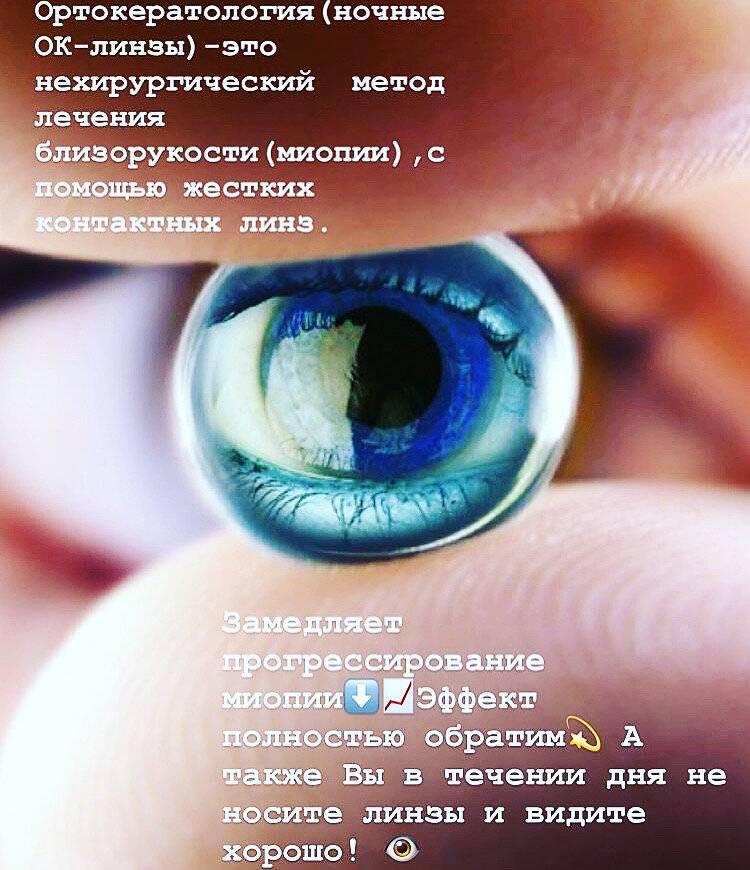Ортокератология: новые горизонты - контактные линзы – очки.net
