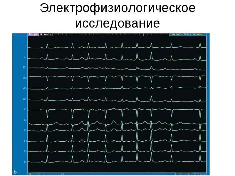 Эфи сердца: назначение врача, особенности подготовки, время проведения, показания, противопоказания и последствия