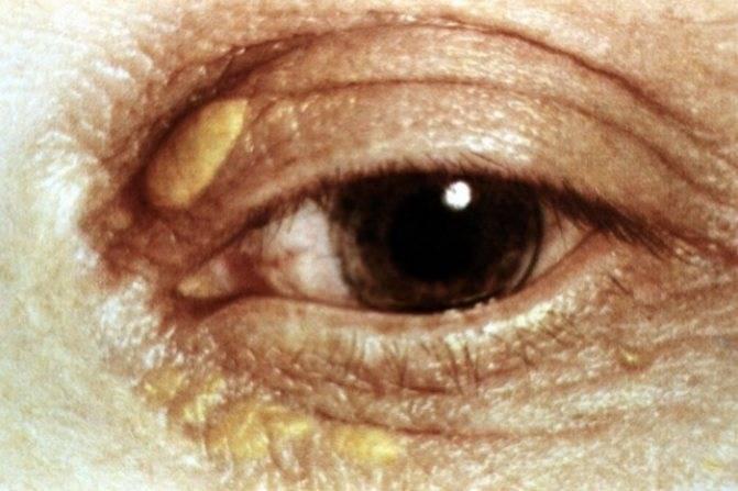 Под глазами желтые пятна. причины желтых пятен под глазами | школа красоты