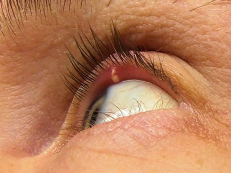 Внутренний ячмень на нижнем веке: лечение внутреннего ячменя на глазу | медицинский портал spacehealth