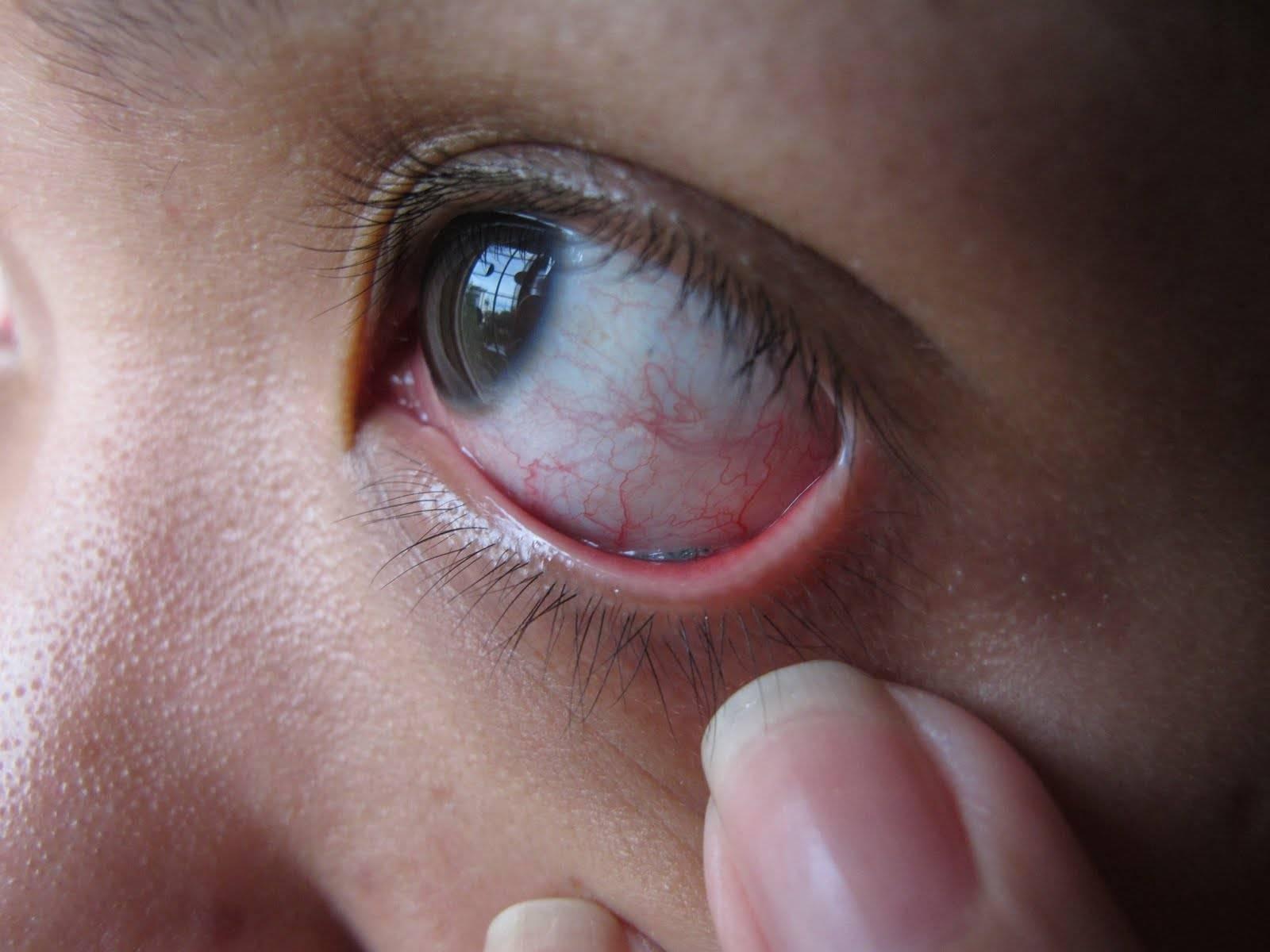 """Ощущение инородного тела в глазу: симптомы, болезни и методы лечения - """"здоровое око"""""""