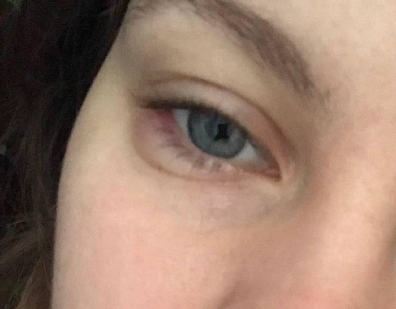 Отек верхнего века одного глаза - причины и лечение, профилактика