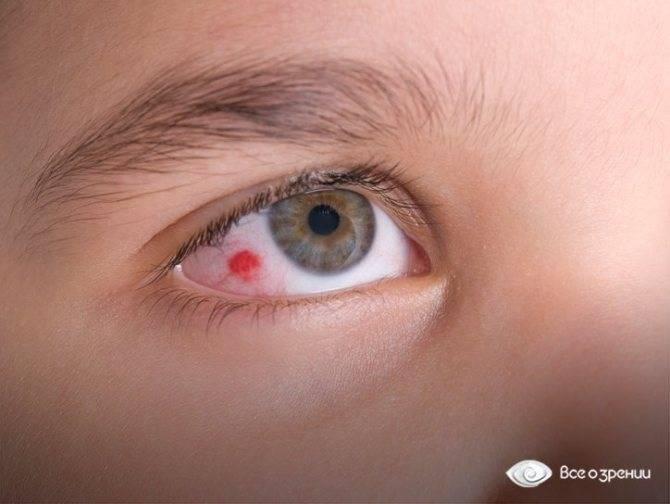 Что делать, если у ребенка воспалился глаз и появилось покраснение: лечение в домашних условиях.