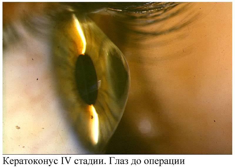 Кератоконус: что это такое, причины, симптомы, лечение, операция, линзы, диагностика, степени, осложнения